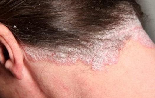 Problemi kože glave koje prati opadanje kose i efikasna rešenja