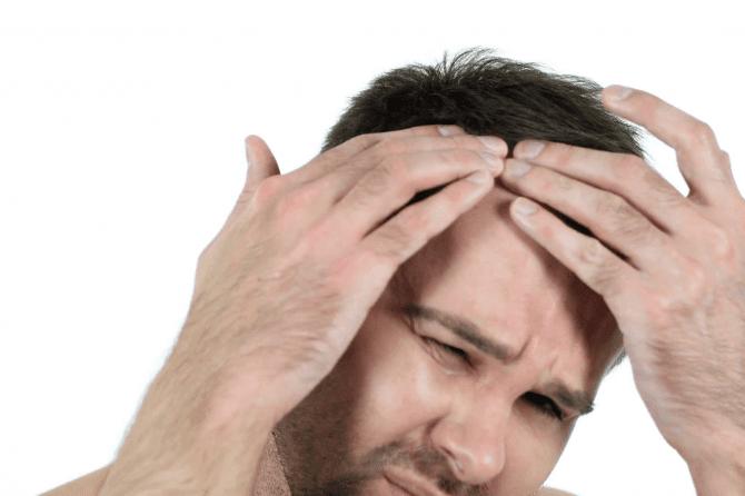 Prepoznajte svoju formu gubitka kose