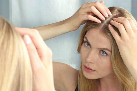 TELOGEN EFLUVIJUM - 101 Hair Care - Problemi Opadanje Kose - Problemi s Kosom