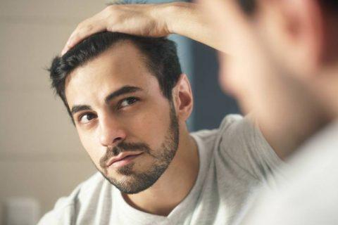 MUŠKA ANDROGENA ALOPECIJA - 101 Hair Clinic - Problemi Opadanje Kose - Problemi s Kosom