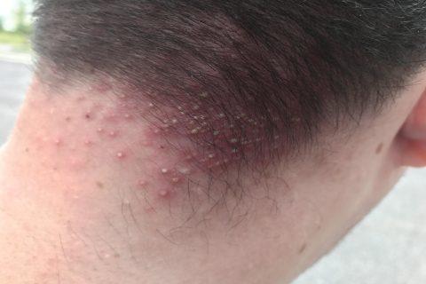 Nerilex losion protiv opadanja kose