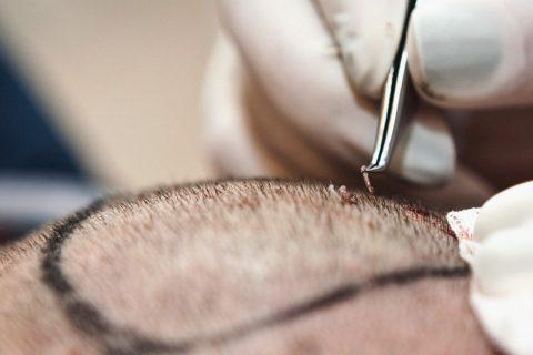 TRANSPLANTACIJA KOSE - 101 Hair Clinic