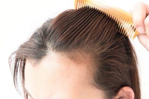 Perut - 101 Hair Clinic - Problemi s Kožom Glave