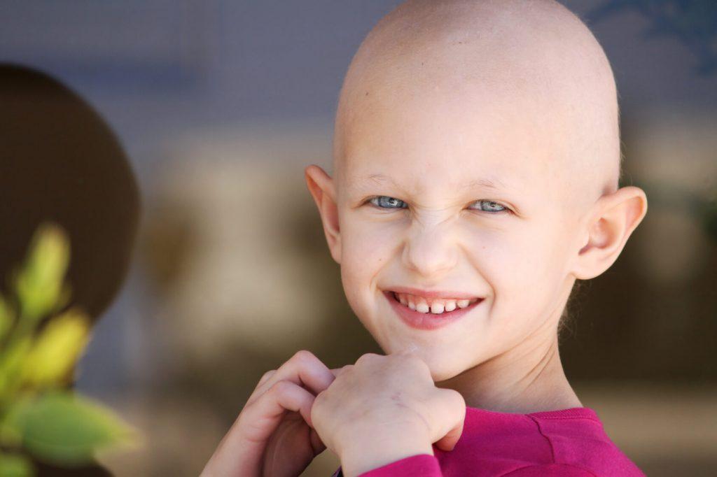 Opadanje kose kod dece – sve što bi trebalo da znate