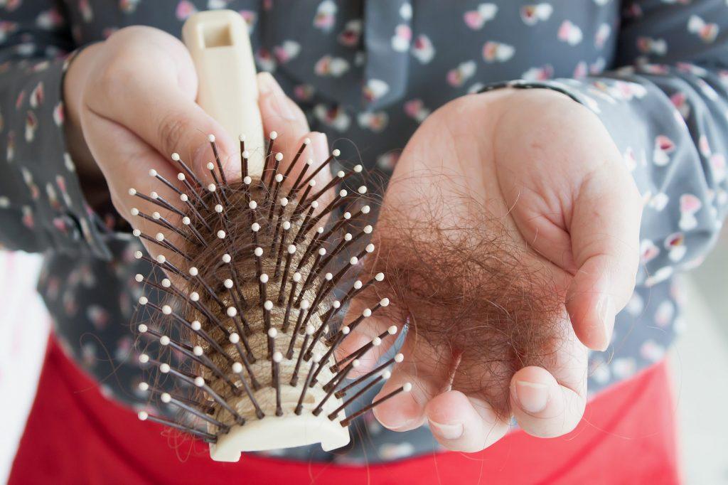 Opadanje kose kod žena