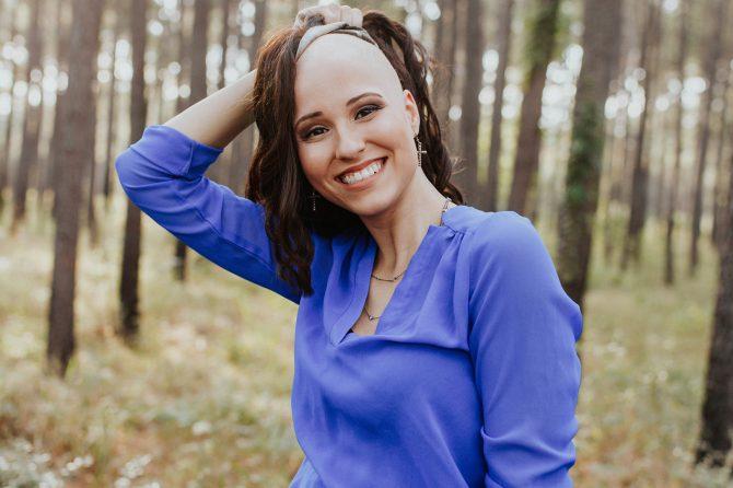 Alopecija totalis – šta kada opadne sva kosa?