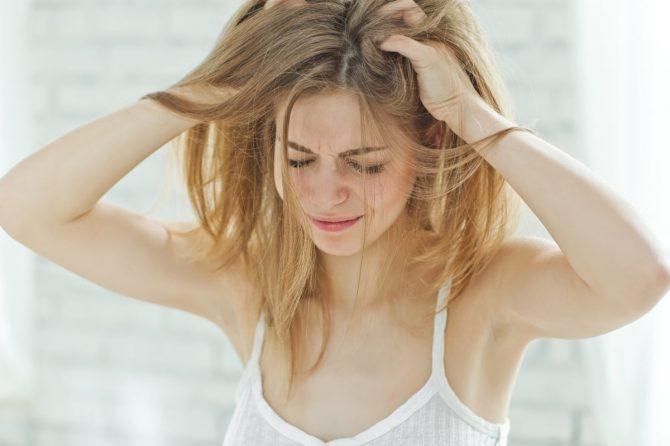 Seboreja na glavi i kako se efikasno leči?